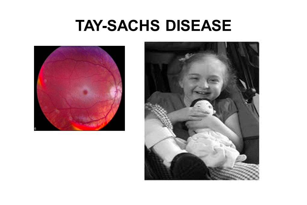 tay sachs disease Autosomal recessive: cystic fibrosis, sickle cell anemia, tay-sachs disease we inherit genes from our biological parents in specific ways one of the ways is called autosomal recessive inheritance.