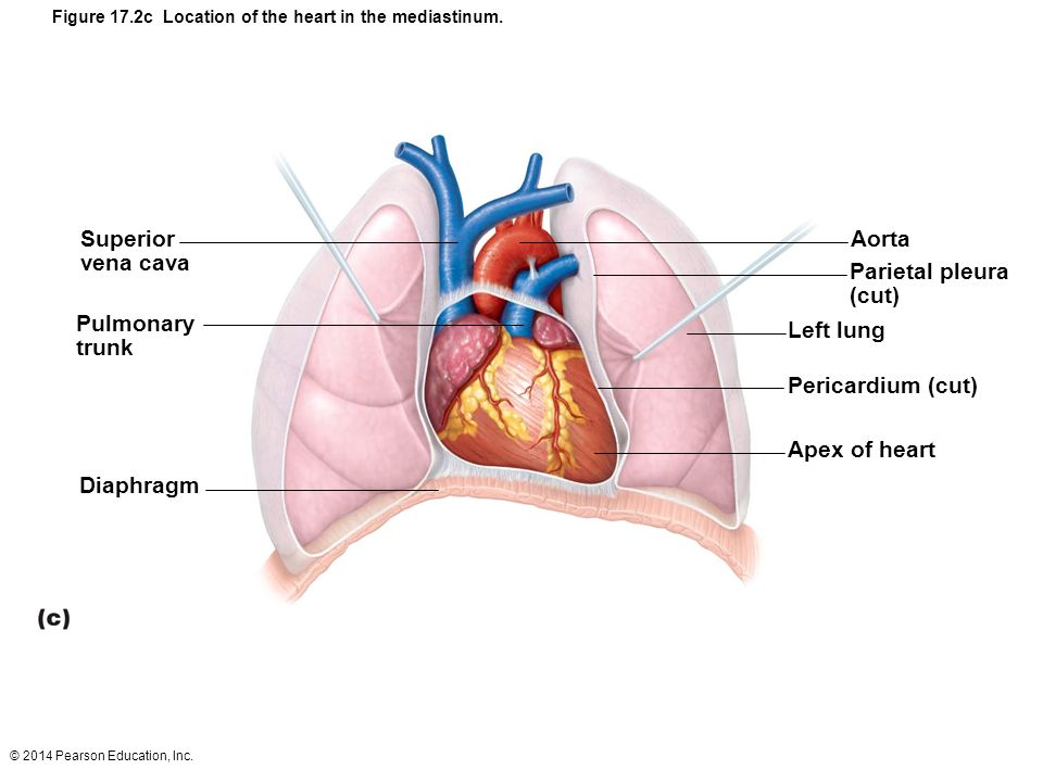 Figure 17.5b Gross anatomy of the heart. - ppt video ...