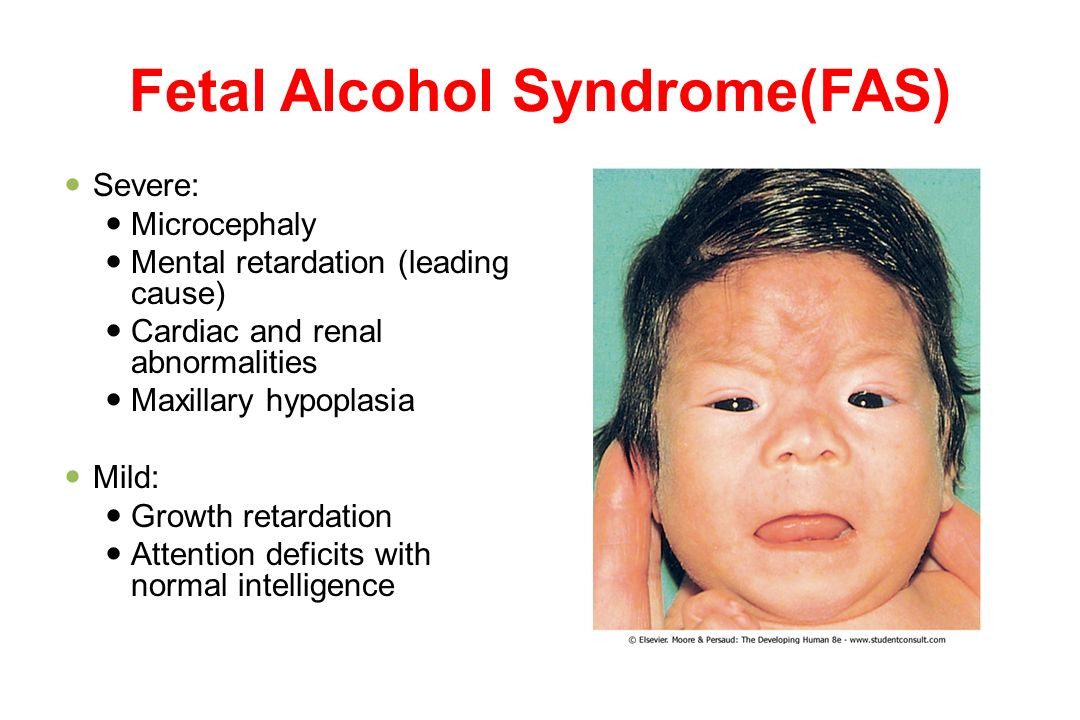 an analysis of the characteristics and treatment of the fetal alcohol syndrome Fetal alcohol syndrome (fas) is a group of health problems that a child is born with it can happen to any child whose mother drinks alcohol while she is pregnant all types of alcohol can cause damage to your unborn baby.