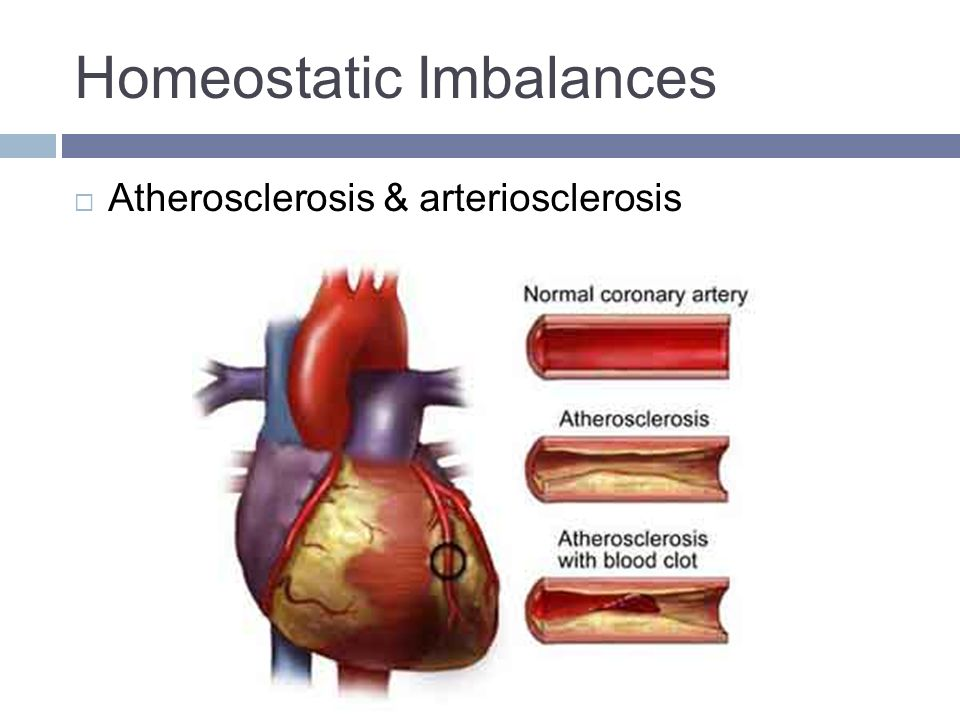 homeostatic imbalances Homeostasis is the process in which the body maintains balance regarding  things like body temperature, water levels, and heart rate.