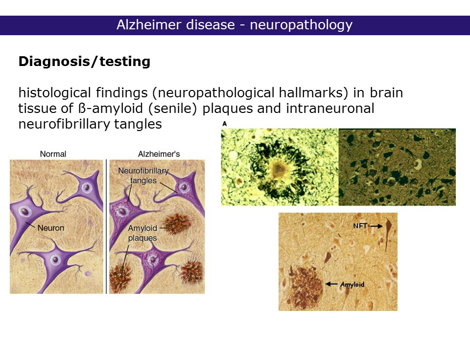 Analytical essay on alzheimer's disease