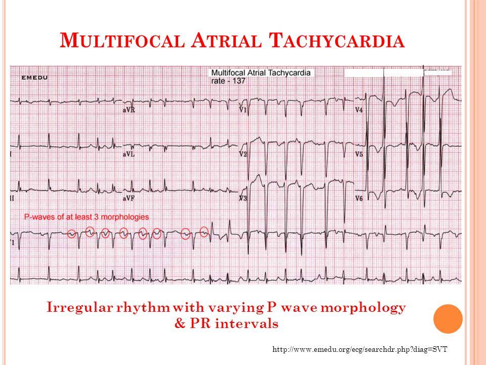 ECG Practice Cases: Pa...