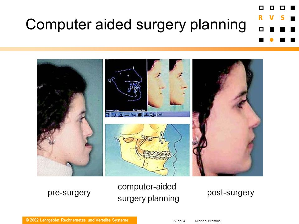 Computer aided surgery planning