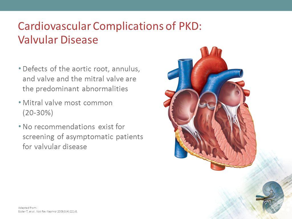 Management Of Autosomal Dominant Polycystic Kidney Disease