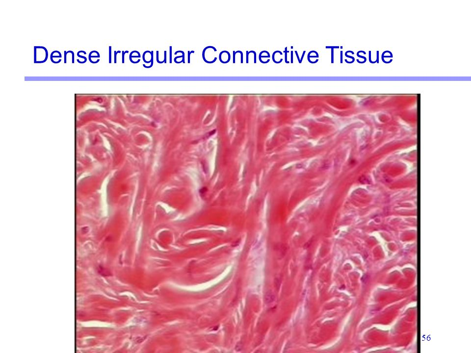Dense connective tissue elastic