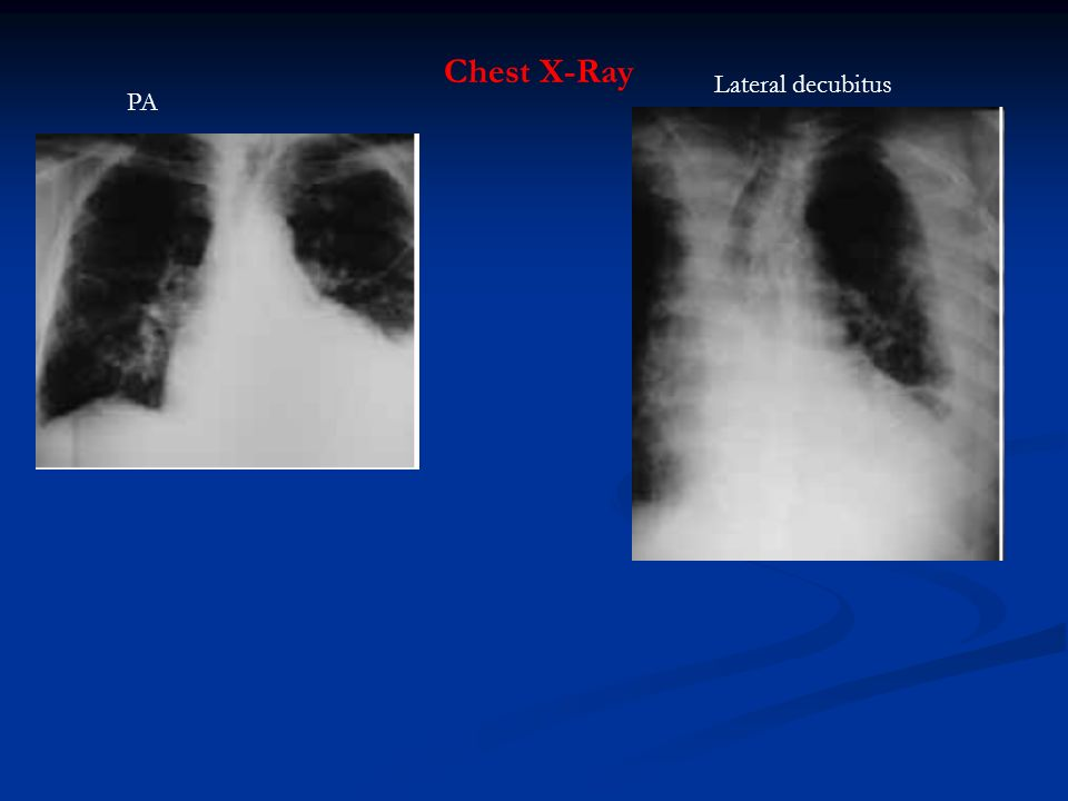 Pleural Effusion. - ppt video online download Pleural Effusion X Ray Lateral