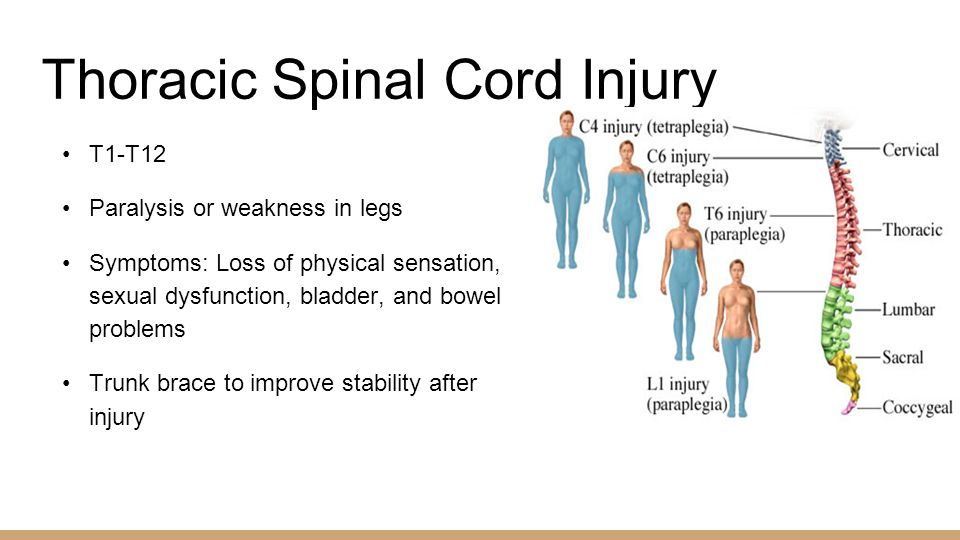 Spinal Stabilization Surgery >> Sylvie Kalikoff & Brad Leavitt - ppt download