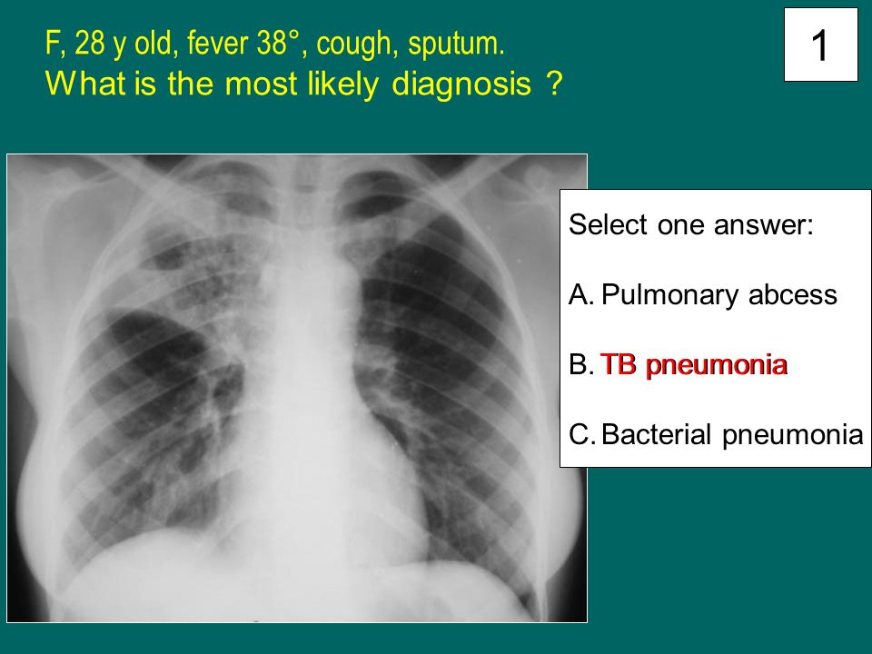 how to help pneumonia cough