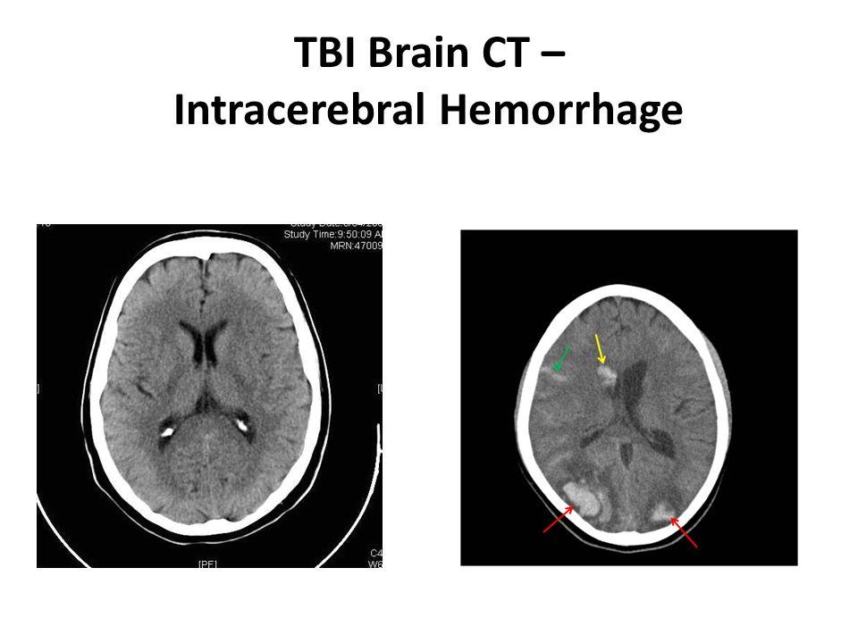 Traumatic Brain Injury...