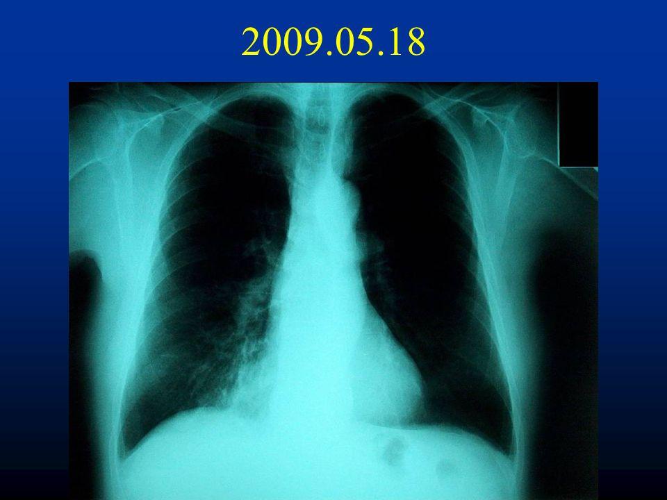pneumocystis jiroveci pneumonia treatment guidelines