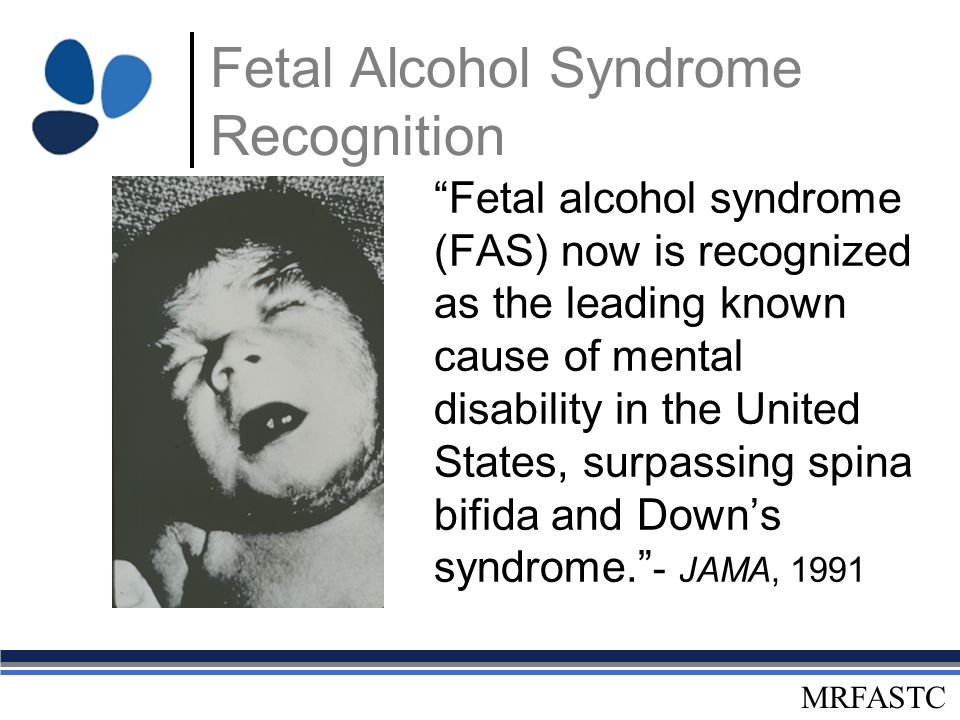 the prevalence of fetal alcohol syndrome in united states Fetal alcohol spectrum disorder has been majorly  has been majorly  underdiagnosed among children in the united states, and it's really concerning   the actual reality and prevalence of fasd in the united states.
