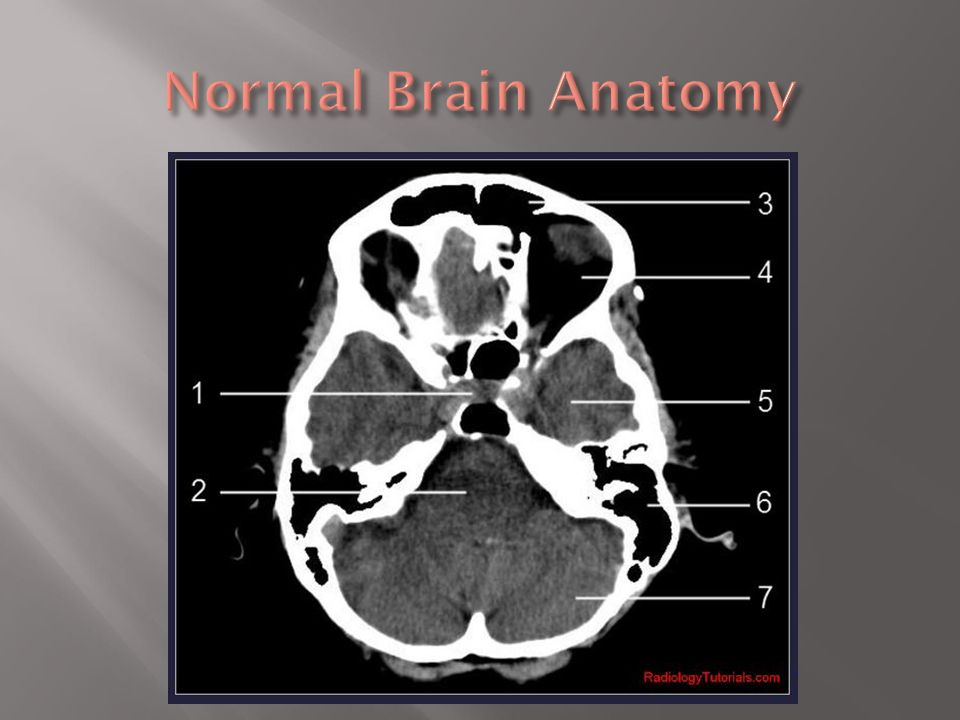 Ct Brain Anatomy Tutorial Choice Image - human body anatomy