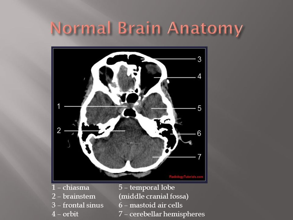 Fine Brain Anatomy On Ct Model - Anatomy And Physiology Biology ...