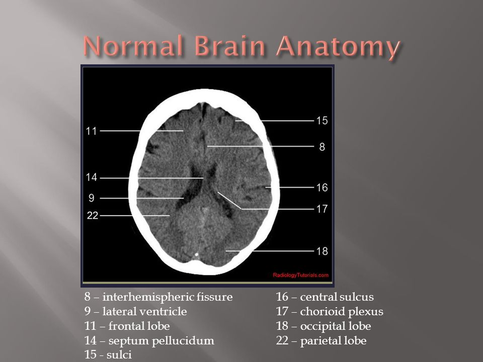 Normal brain anatomy