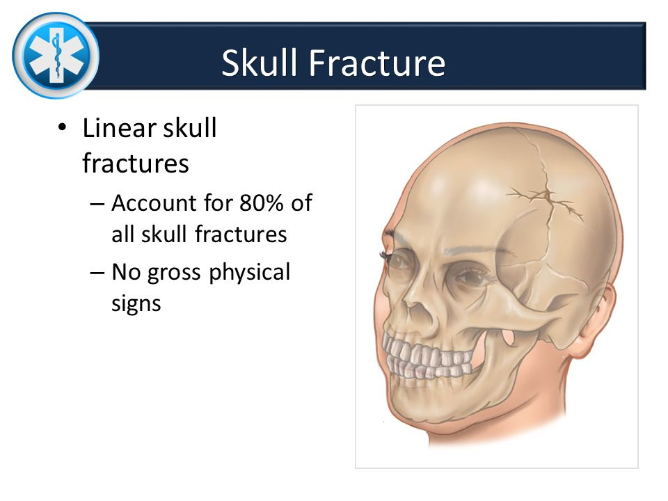 Linear Skull Fracture : Chapter head and spine trauma dr sadia farhan ppt