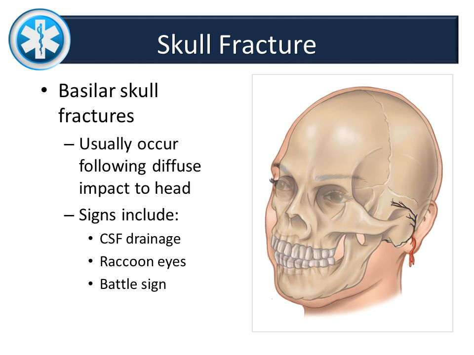 Chapter 34 Head and Spine Trauma DR SADIA FARHAN. - ppt ...