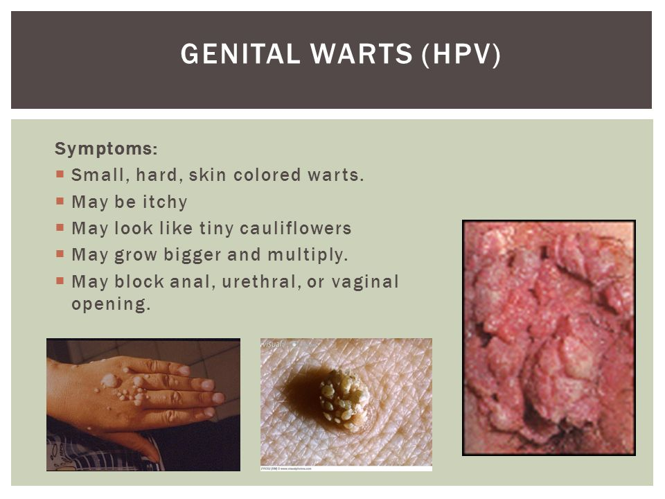 Something vaginal hpv surgical treat