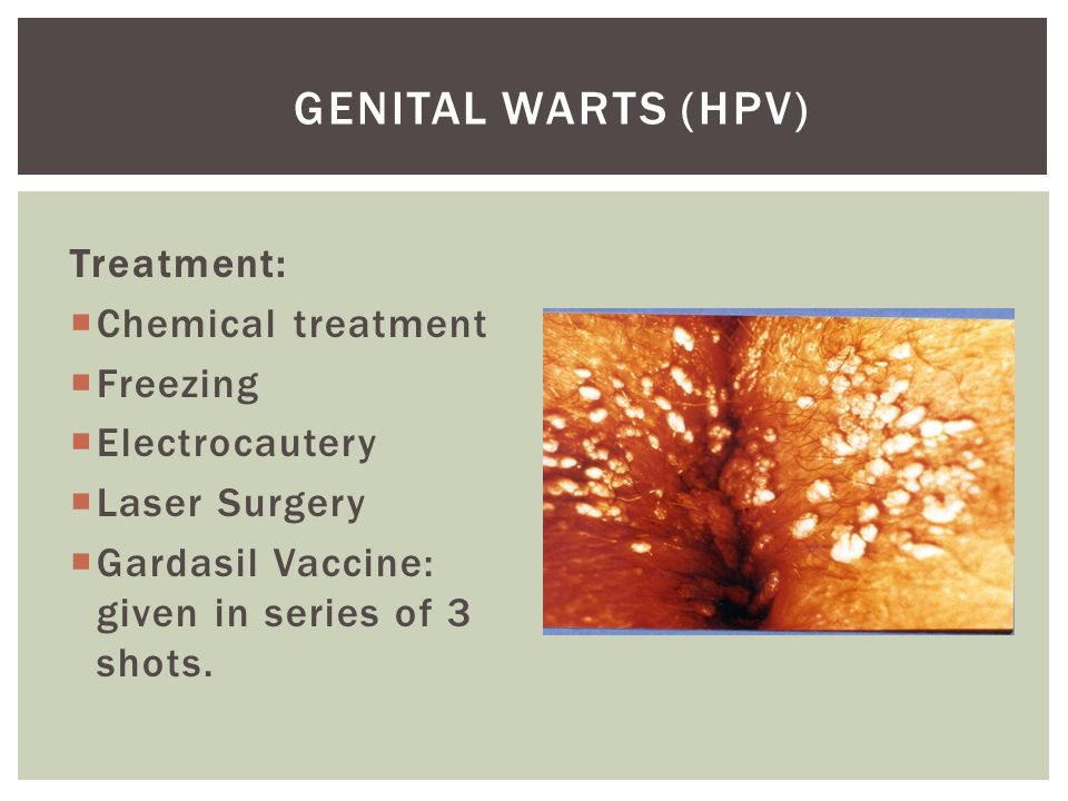 Can you get genital warts without sexual contact
