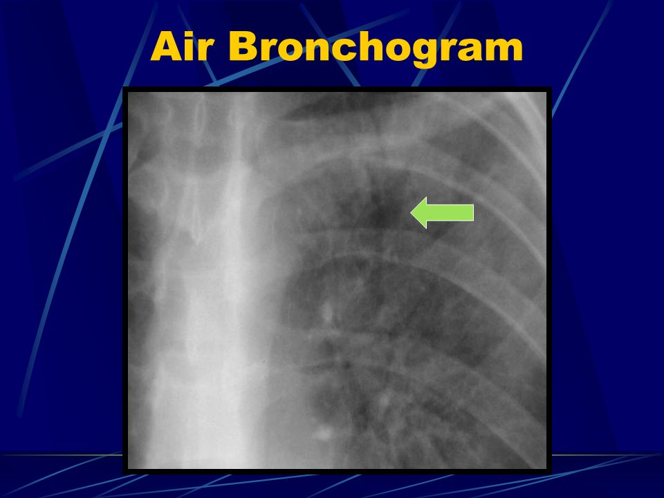 Interstitial Lung Disease X Ray Basics of Chest Imagin...