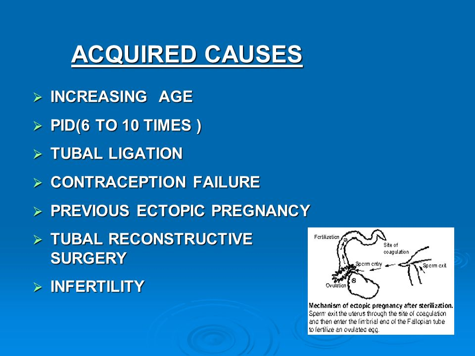 ectopic pregnancy and age The incidence is increasing, with a peak age of 25-34 years  the majority of women with ectopic pregnancy will present with a history of vaginal bleeding.