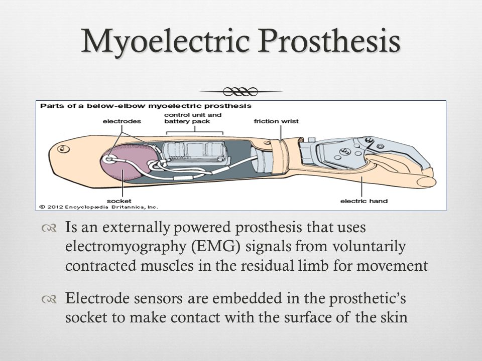 MYOELECTRIC ARMS AND HANDS