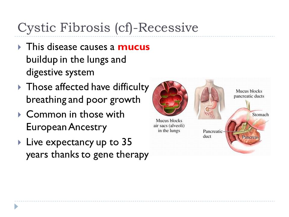 cystic fibrosis pku and the digestive What causes cystic fibrosis and how is cystic fibrosis inherited learn about the diagnosis,  most people with cystic fibrosis also have digestive problems.