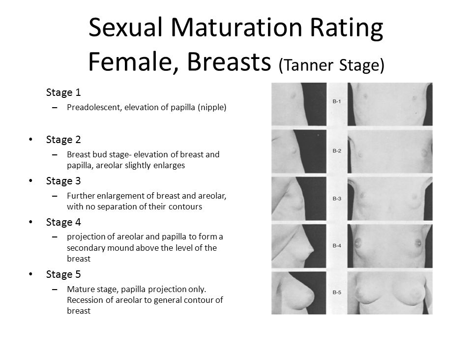 Sexual Development and Sexuality - ppt video online download: http://slideplayer.com/slide/9169110/
