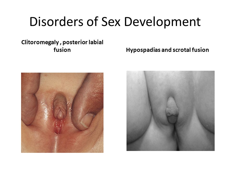 Sexual Development 45