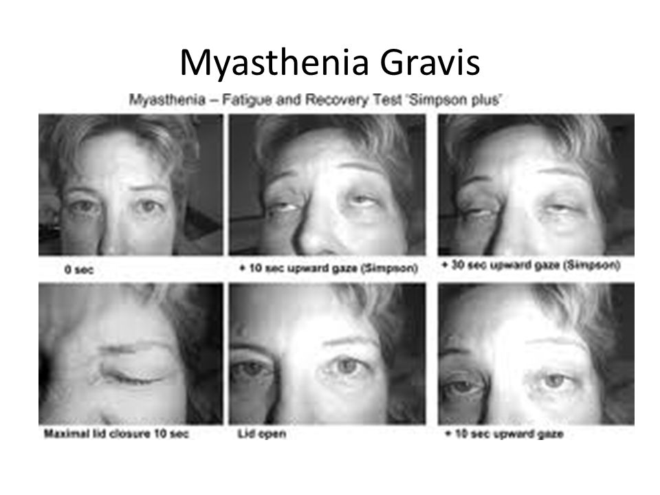 Effects of Myasthenia Gravis on Voice, Speech, and Swallowing