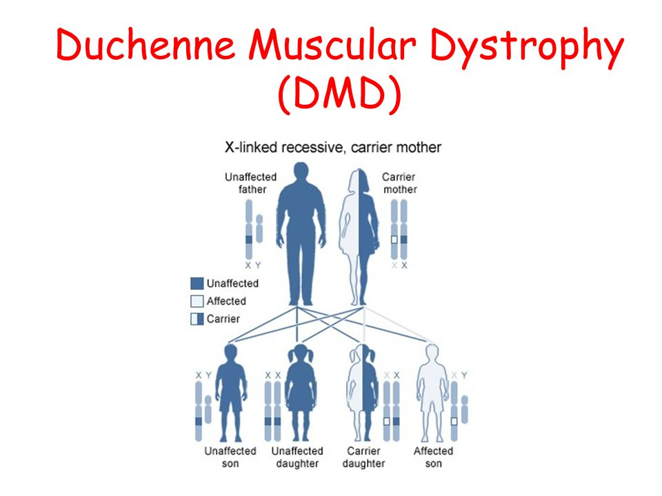 an analysis of muscular dystrophy Myotonic muscular dystrophy (dmd) is a genetic disorder characterized by muscle degeneration and weakness it is a common form of muscular dystrophy that generally begins in adulthood myotonic dystrophy can be categorized into myotonic dystrophy type 1 (dm1) and myotonic dystrophy type 2 (dm2.