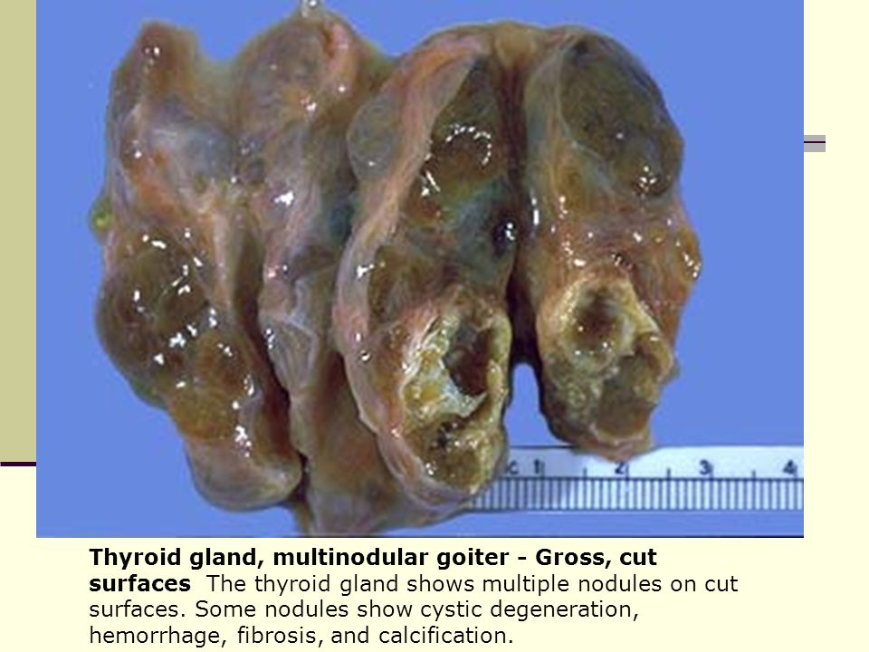 Multi goiter thyroid