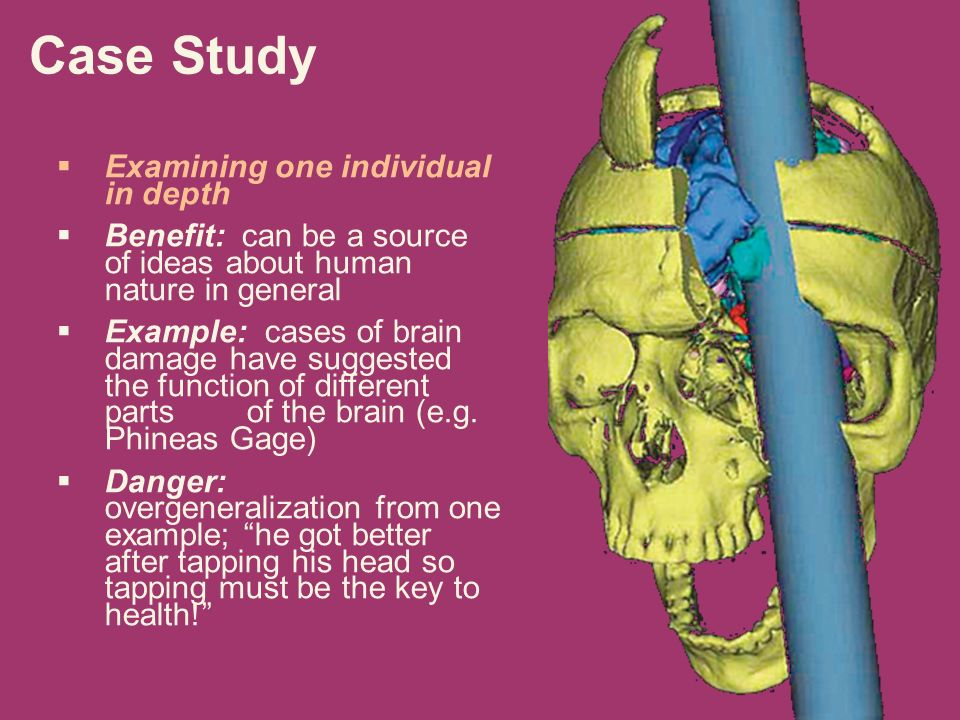 phineas gage 3 essay Read this essay on phineas gage come browse our large digital warehouse of free sample essays get the knowledge you need in order to pass your classes and more only at termpaperwarehousecom.