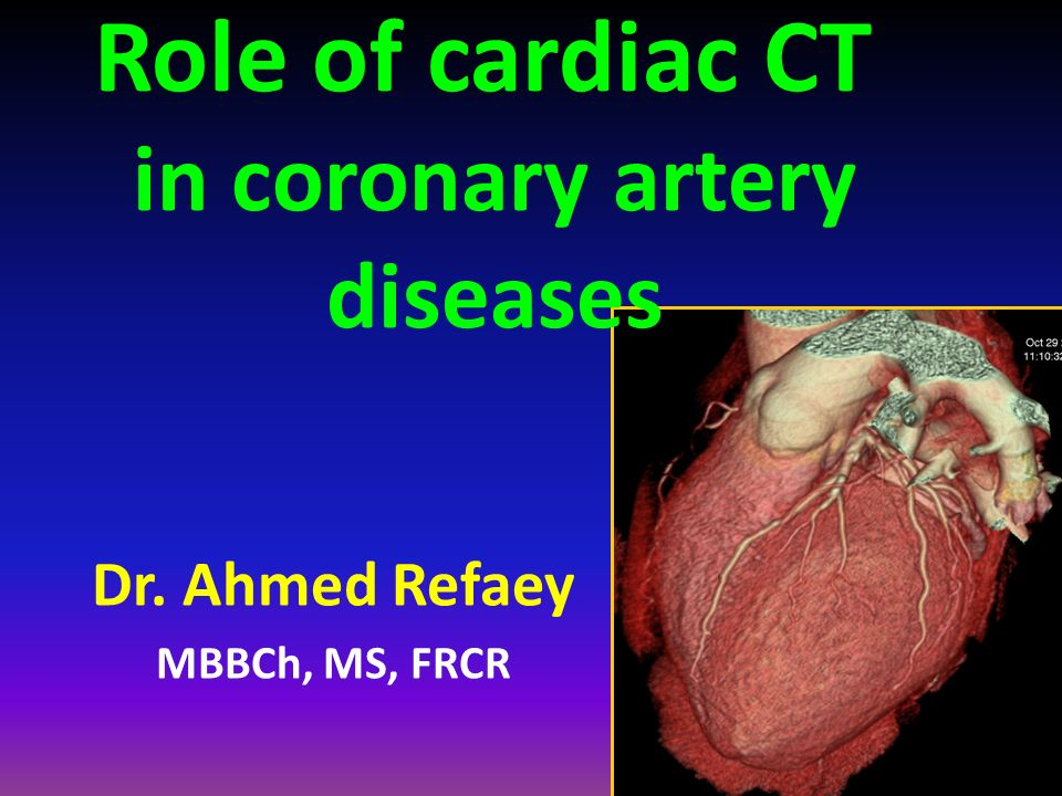 Role of cardiac CT in coronary artery diseases - ppt video online ...
