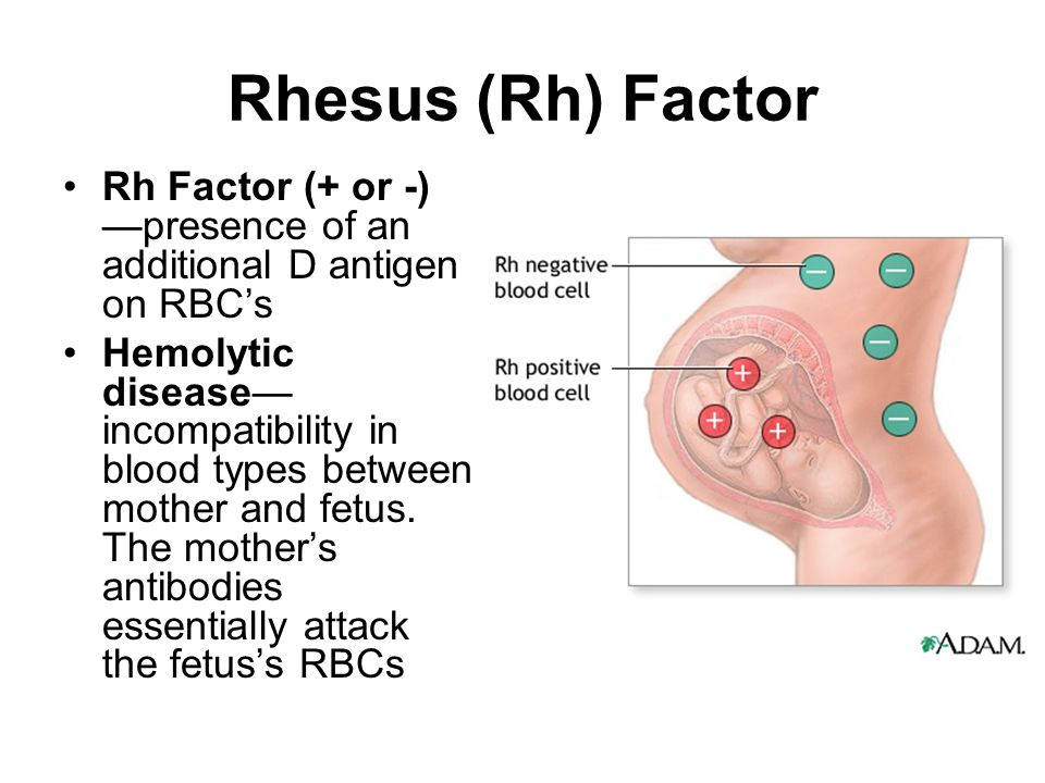 Rh disease - Essay Example
