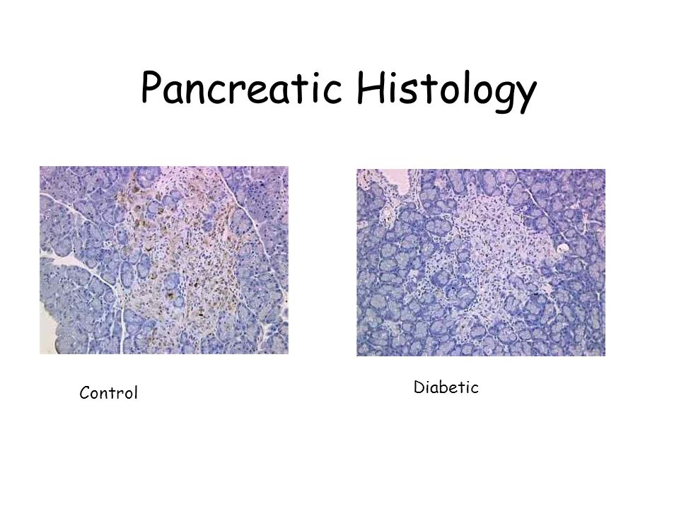 Alterations of Lipid Metabolism in Diabetes Mellitus - ppt video online download