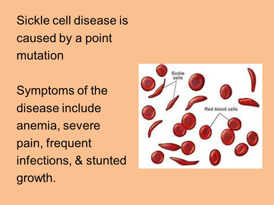 Sickle cell disease is caused by a point mutation Symptoms of the disease include anemia, severe pain, frequent infections, & stunted growth.