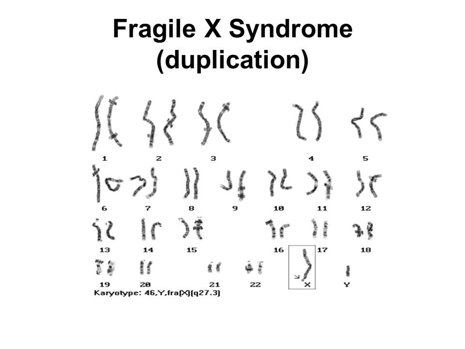 essays on fragile x syndrome Fragile x syndrome  what is fragile x syndrome (fxs) fragile x syndrome (also called fxs) is the most common cause of inherited mental retardation.
