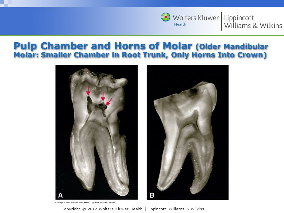 i  internal pulp cavity morphology related to endodontic