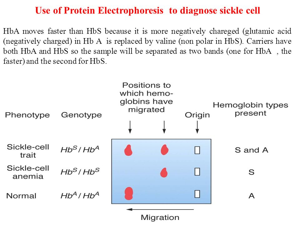 how to use electrophoresis in a sentence
