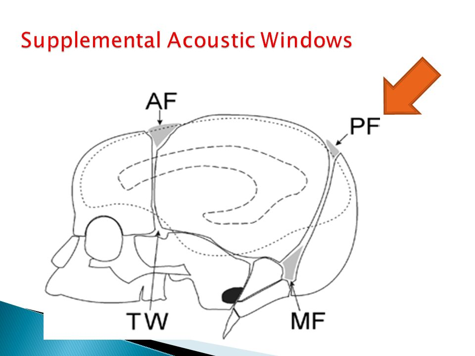 Supplemental Acoustic Windows