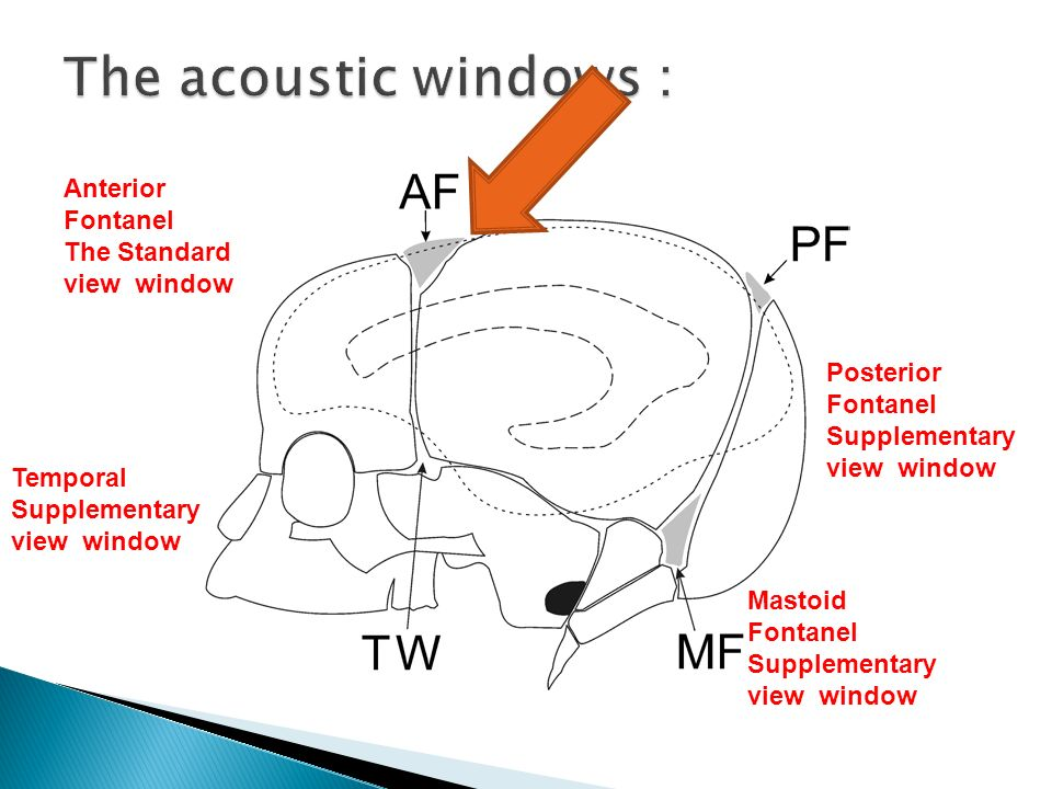 The acoustic windows : Anterior Fontanel The Standard view window