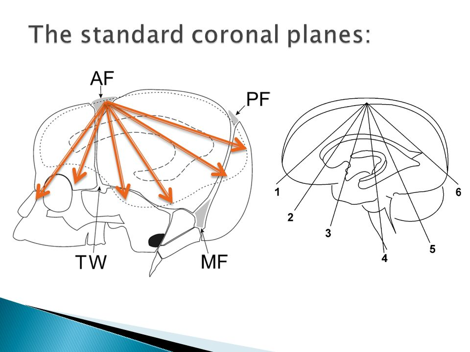 The standard coronal planes: