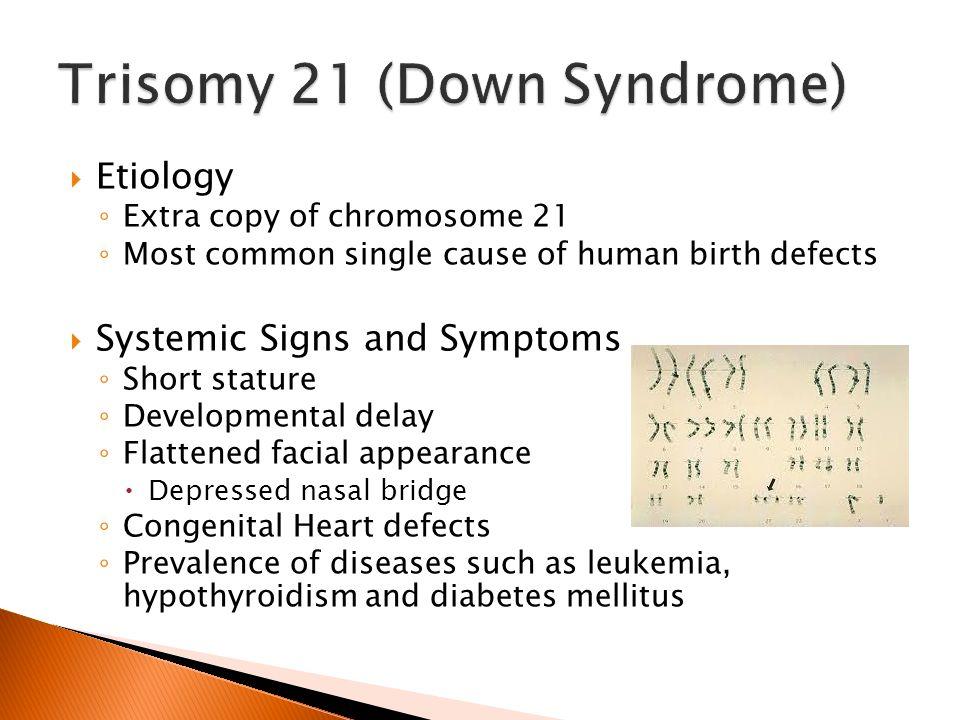 trisomy 21/down syndrome case study Buddadhumaruk, praewpannarai (2013) a case-case genome-wide association study of trisomy 21 trisomy 21, nondisjunction, down syndrome: date deposited.