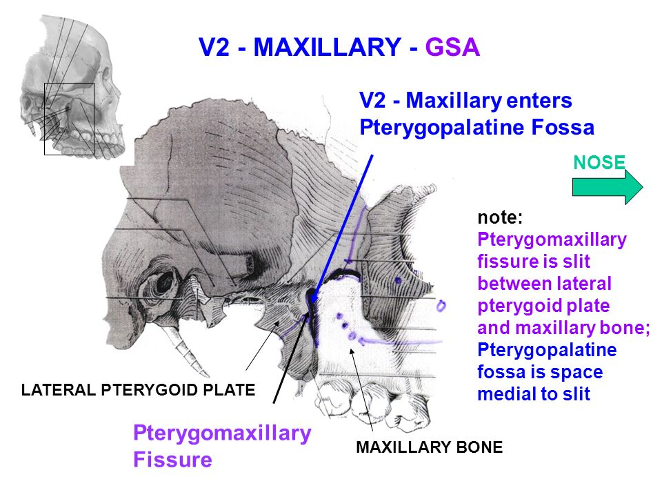 pterygopalatine fossa notes Study pterygopalatine fossa, nasal cavity, and paranasal sinuses flashcards from joel glotfelty's rutgers robert wood johnson medical school class online, or in brainscape&#39s iphone or android app learn faster with spaced repetition.