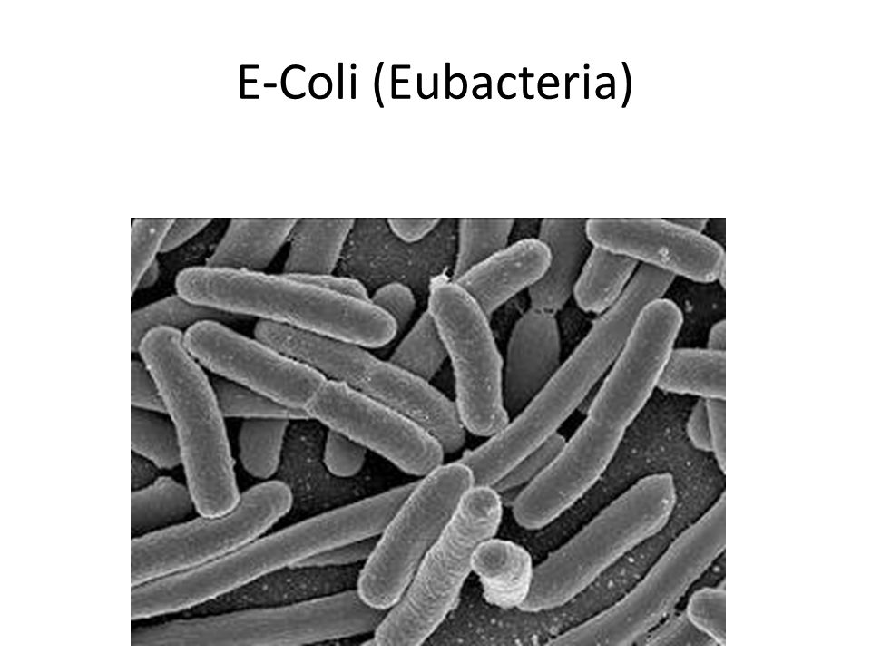 eubacteria e coli Classification domain: bacteria kingdom: bacteria phylum: proteobacteria class: gamma proteobacteria order: enterobacteriales  species: escherichia coli (e coli.