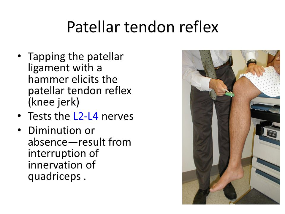 patellar reflex Patellar reflex striking the patellar ligament with a reflex hammer just below the patella stretches the muscle spindle in the quadriceps muscle this produces a signal which travels back to the spinal cord and synapses (without interneurons) at the level of l3 in the spinal cord, completely independent of higher centres.