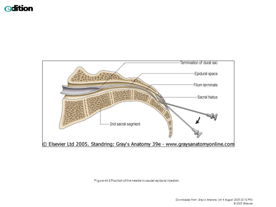 Figure Planes And Regions Of The Abdomen Ppt Download