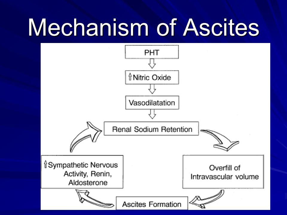 Varices and ascites