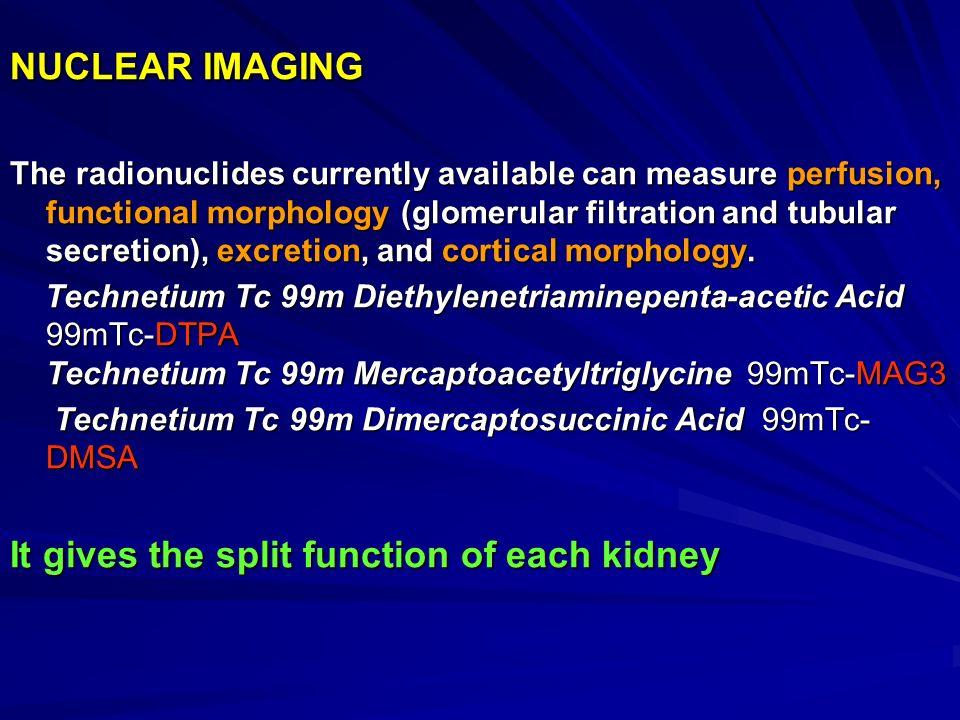 Urodynamic study patient information
