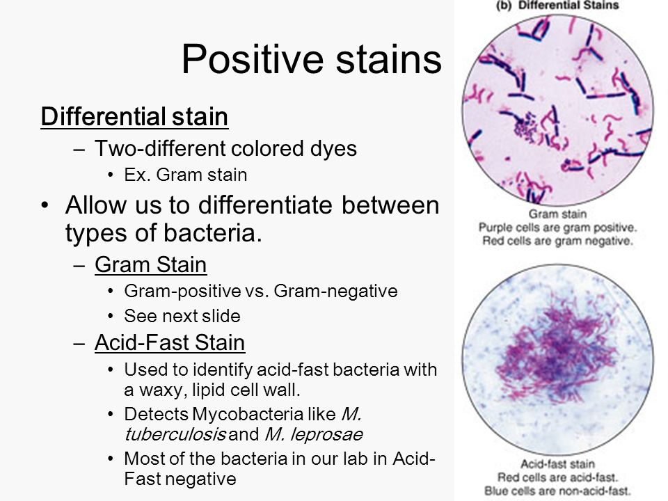 Acid fast stain